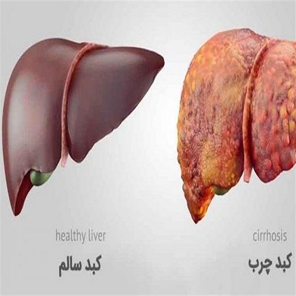 توصیه های طب سنتی برای درمان کبد چرب