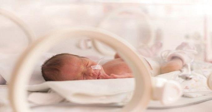 تولد پیش از موعد با تاخیر در سخن گفتن کودک ارتباط دارد
