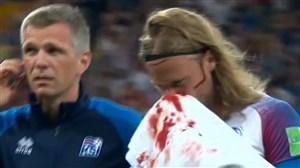 فیلم / برخورد خونین بازیکنان کرواسی و ایسلند