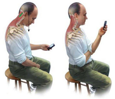 طرز استفاده صحیح از گوشی، تنها درمان قطعی تکست نک
