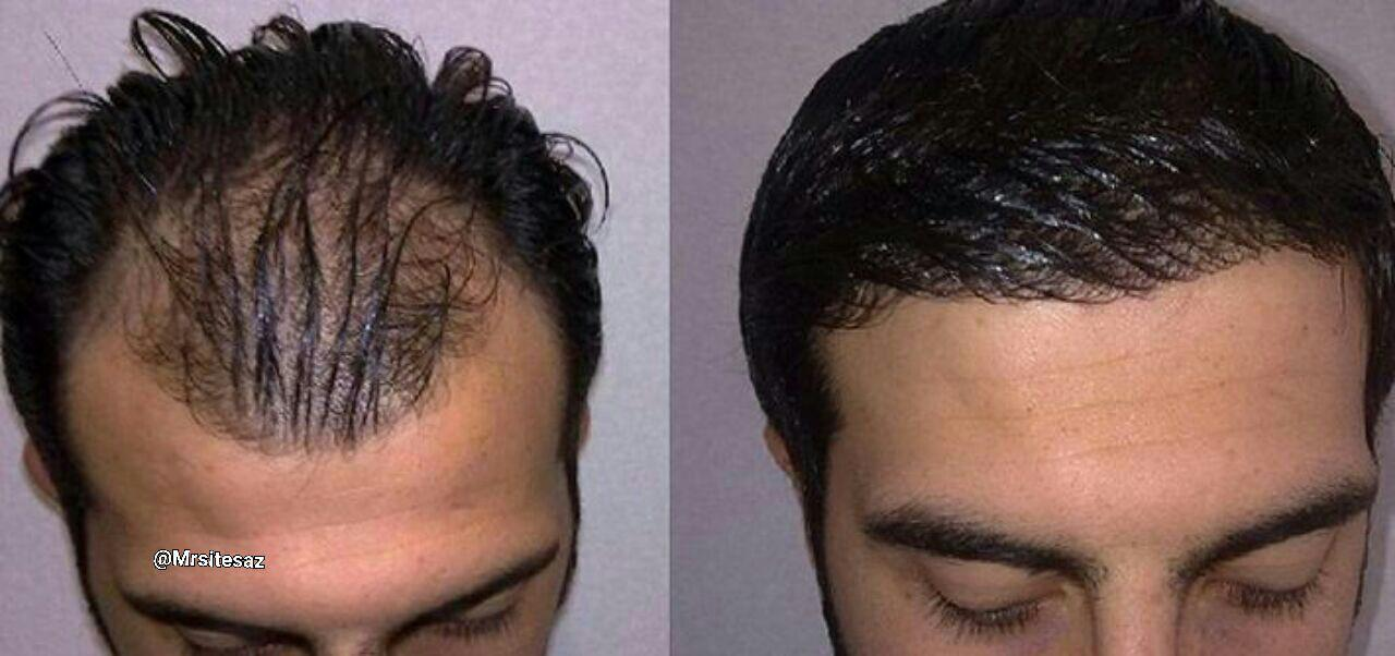 هزینه کاشت مو به روش سیفر