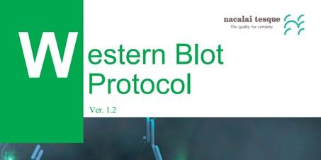 پروتکل انجام وسترن بلات Western blot protocol
