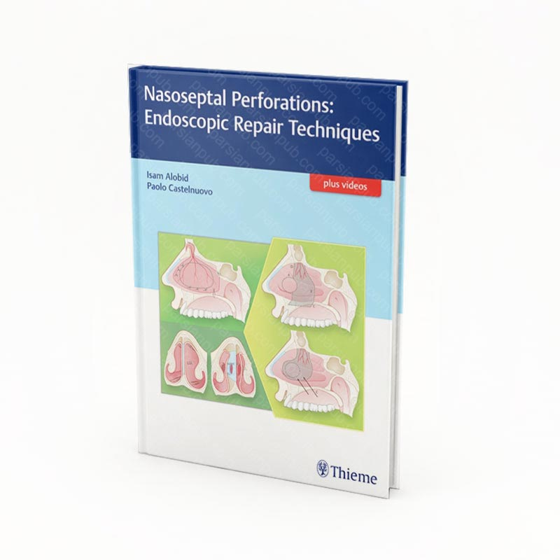 Nasoseptal Perforations: Endoscopic Repair Techniques 1st Edition