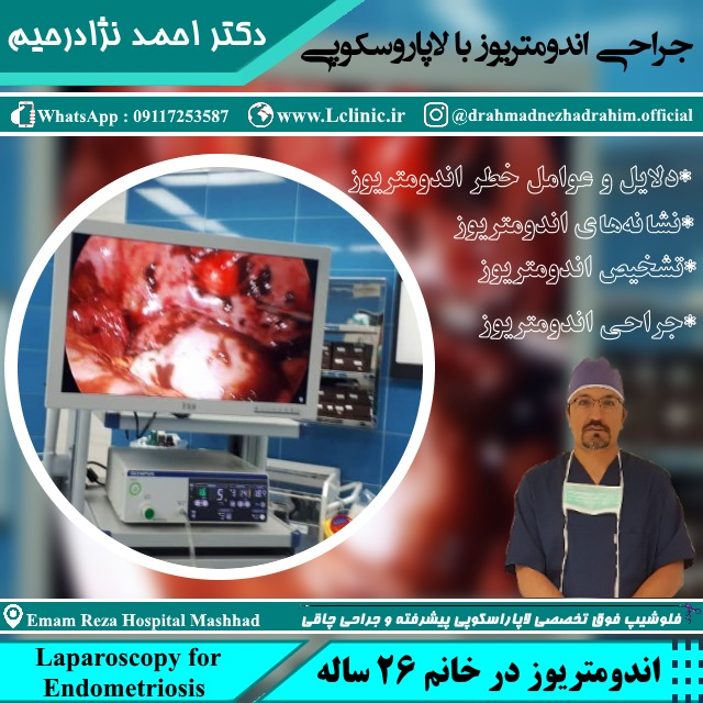 endometriosis laparoscopy