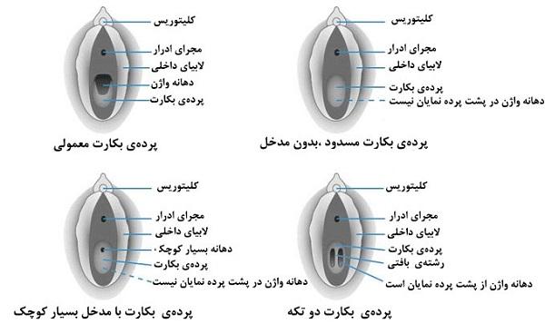 توضیحات کامل و عکس پرده بکارت