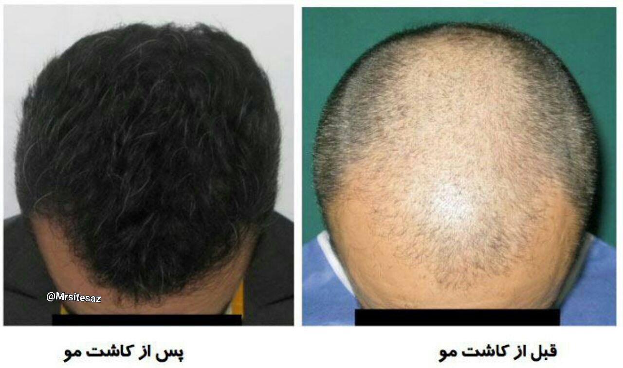 هزینه کاشت مو در تهران
