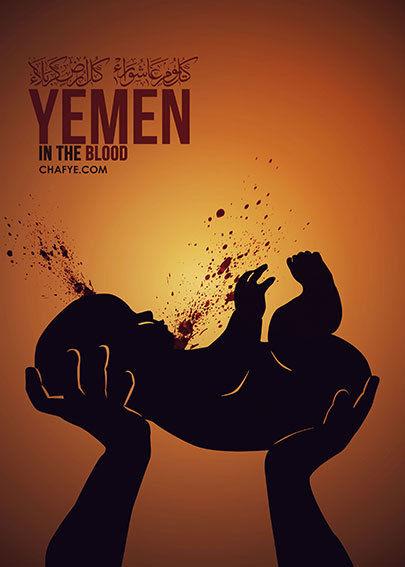 http://bayanbox.ir/view/6510648895387003523/yemen-baby-2-1.jpg