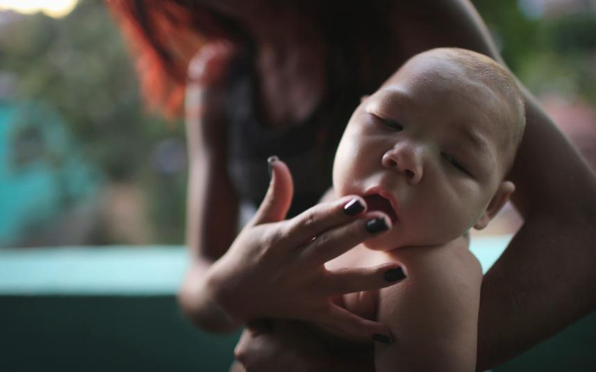 تصاویر غم انگیز از مبتلا شدن کودکان به ویروس زیکا