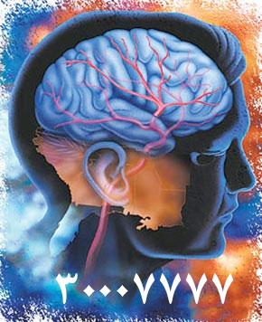 مهمترین عامل سکته مغزی