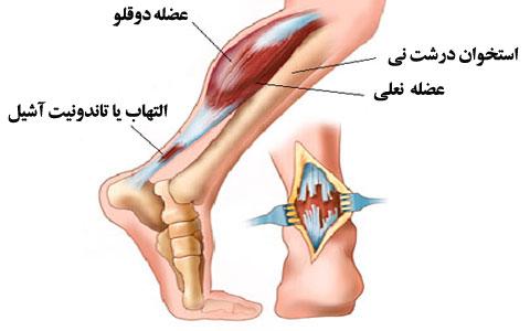 Image result for آسیب های ساق پا