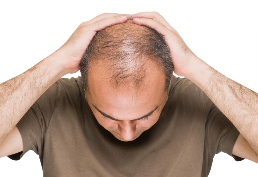 ریزش مو طب سنتی اسلامی