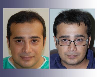 هزینه کاشت مو در ایران