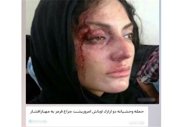 حمله اراذل و اوباش به مهناز افشار شایعه است