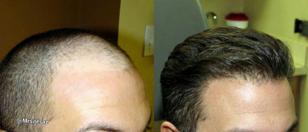 هزینه کاشت مو ترکیبی
